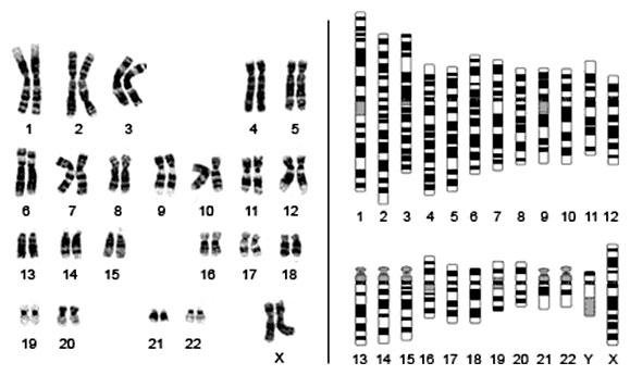 Karyotyp vs. idiogram