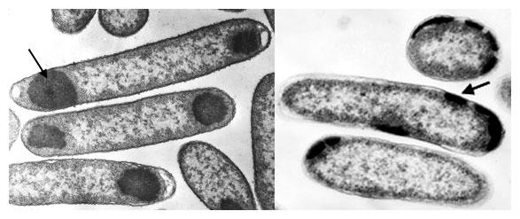 Elektrón-mikroskopický obraz inklúznych teliesok rekombinantného proteínu v Escherichia coli