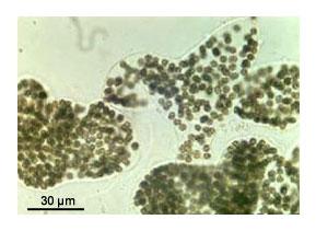 Microcystis - kolónie obalené slizom