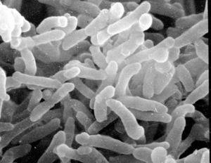 Corynebacterium diphteriae