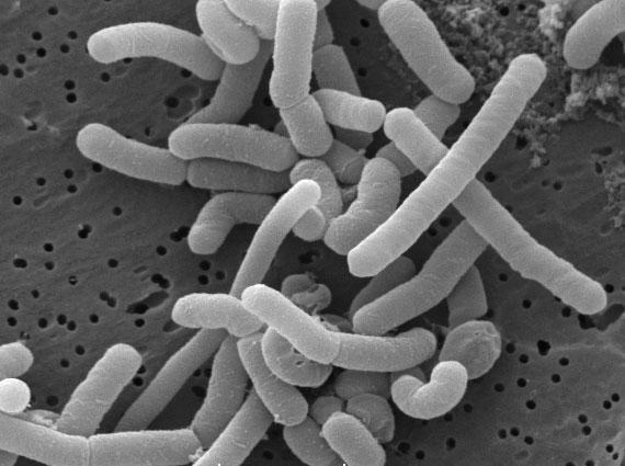 Lactobacillus paracasei