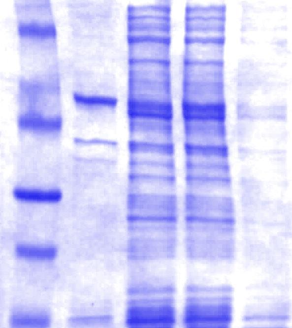 Polyakrylamidový gél farbený Coomassie Brilliant Blue R-250